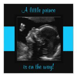 Boy Baby Customized Ultrasound Photo Template